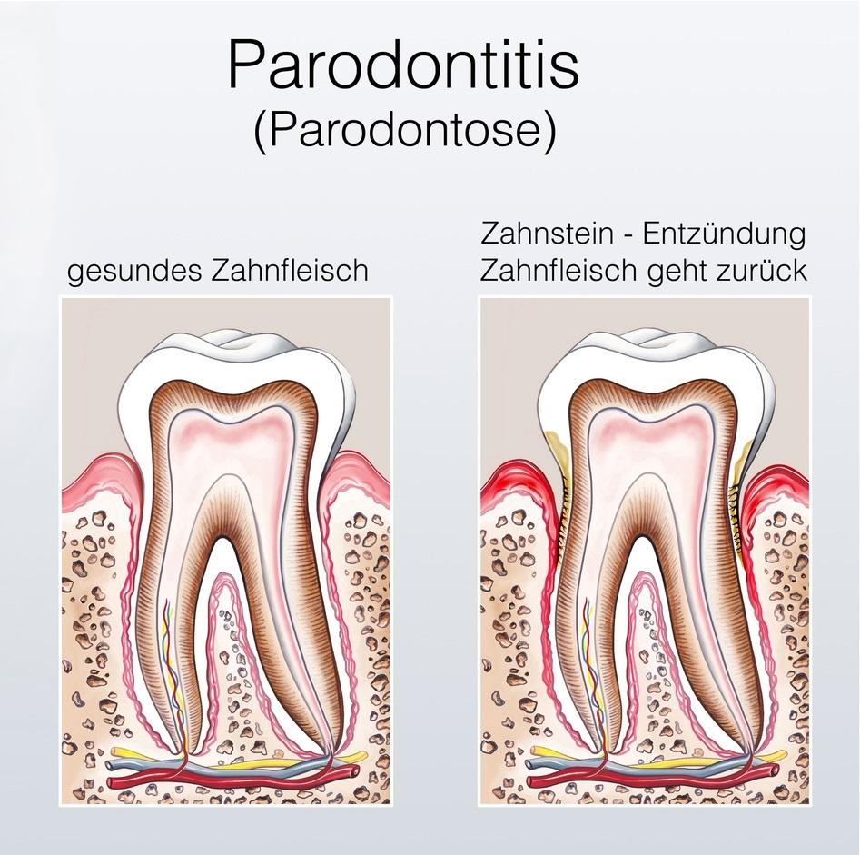 Zahnverlust (Gründe) - Was führt zum Zahnverlust? - zahnimplantate ...