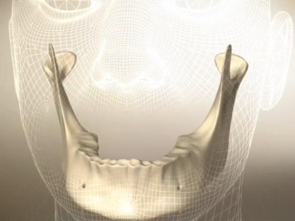Implantate bzw. Zahnimplantate - Welche verschiedenen Varianten ...
